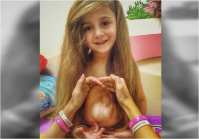 6-year-old girl's heart grew outside her body but she still thanks Jesus despite constant risk to her life